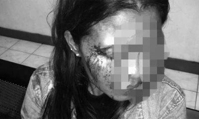 VV korban keberingasan mantan suami siri yang dibakar api cemburu. (ist)